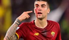 الدّماء تسيل من وجه لاعب روما خلال مواجهة أودينيزي