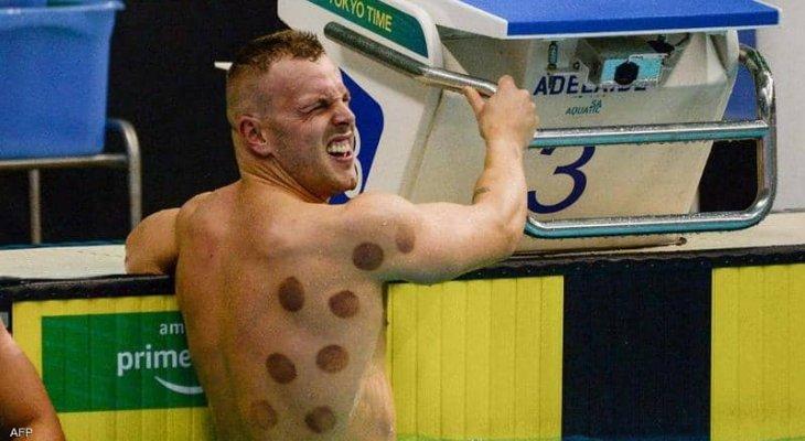 بقع داكنة على اجسام بعض لاعبي اولمبياد طوكيو 2020